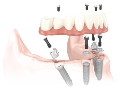 All on 4 Dental Implants :Overview of Dental Implants in Gums with a Dental Bridge - Cameo Dental Specialists, Dentist, Endodontist, Periodontics and oral Surgeon in River Forest, Berwyn, La Granga and West Loop, Chicago.