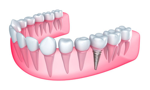 Ways of Keeping Your Body from Rejecting Dental Implants