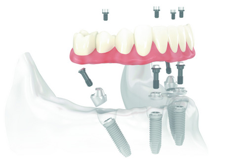 Is All-On-4 Good For Just One Arch Of Replacement Teeth?