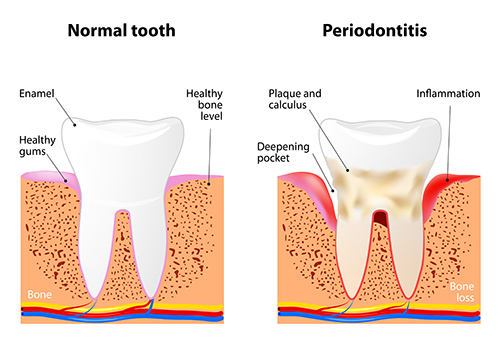 Periodontal Disease Diagram used by Periodontist in Chicago at Cameo Dental Specialists.