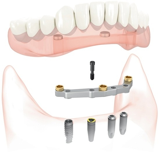 Diagram of All on 4 Teatment in Chicago at Cameo Dental Specialists